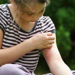 Bed Bug Bites vs Mosquito Bites: Know The Difference